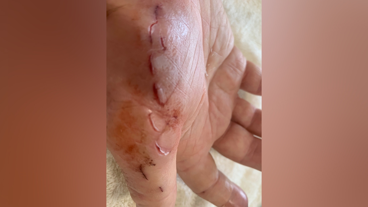 Florida man claims dolphin attacked him off of Sand Key